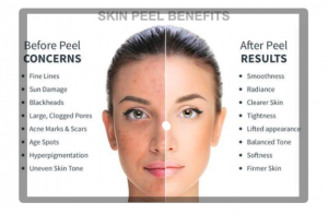 Skin Peel Benefits